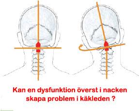 Kan störning i nacken skapa problem i käkleden?